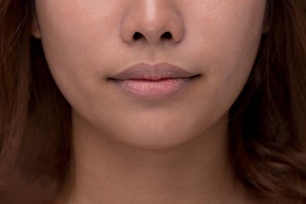 phụ nữ môi thâm