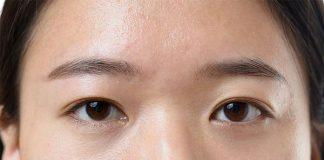 mắt mí lót là gì